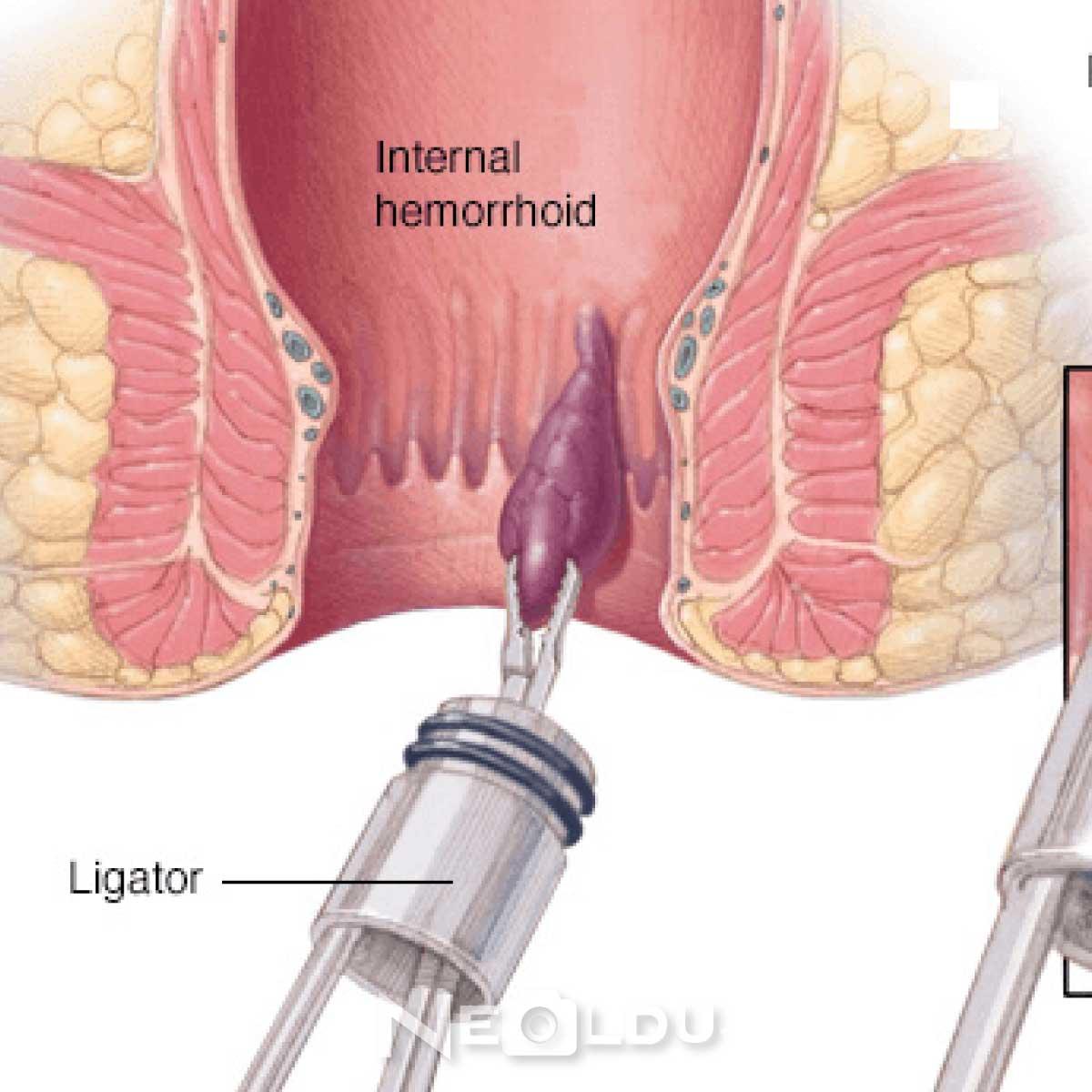 LazerleHemoroid Ameliyatı Nasıl Yapılır