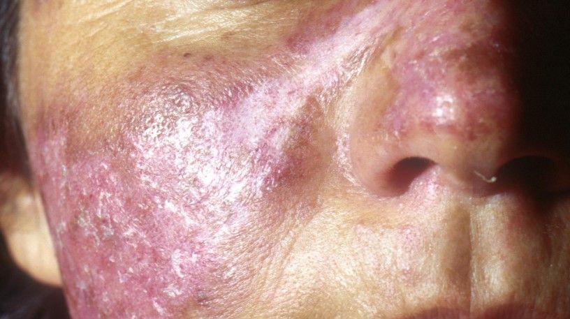lupus-hastaligi-001.jpg
