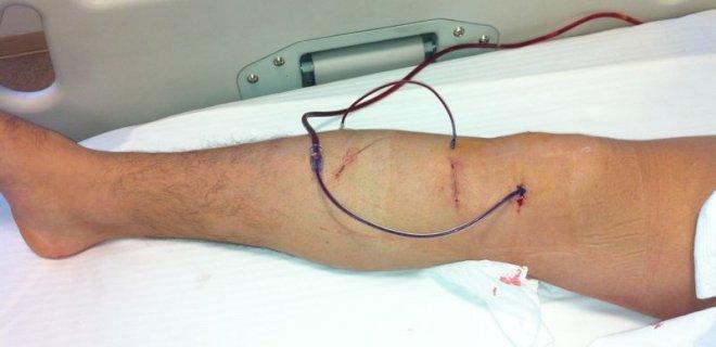 menikus-ameliyati.jpg