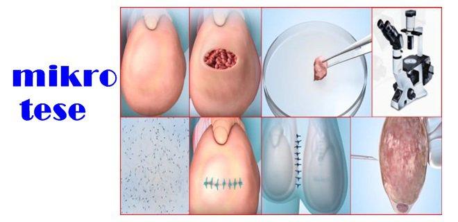 mikro-tese-ameliyat.jpg