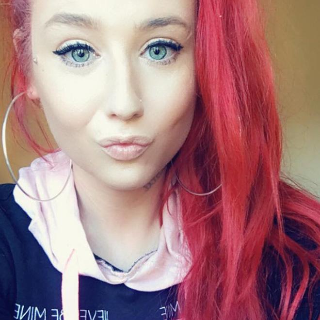 Modellik Yarışmasındaki Kızın Burnunu Kırdılar