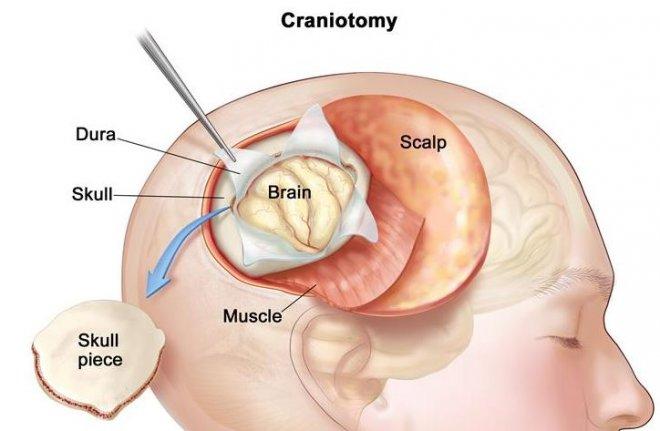 noroendokrin-tumorler-nedir.jpg