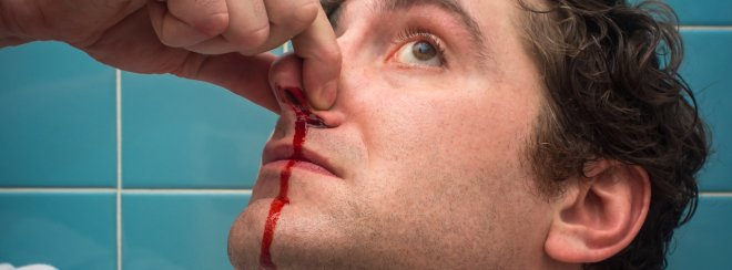 nose-bleeding.jpeg