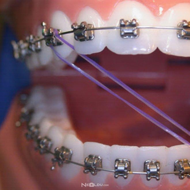 ortodonti-tedavisi-ne-kadar-sürer.jpg