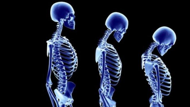 osteoporoz-.jpg