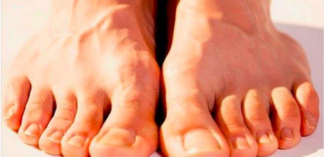 parmak-arasi-terlik-ayak-parmaklarinizin-kalici-olarak-bukulmesine-sebep-oluyor.jpg
