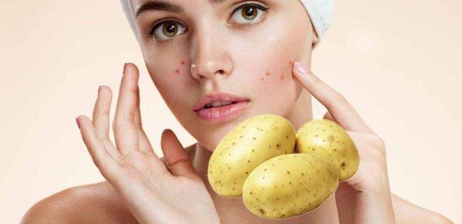 patates-maskesi.jpg
