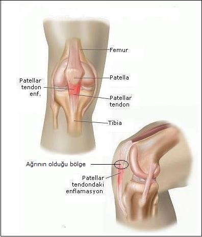 Patellar Tendinit