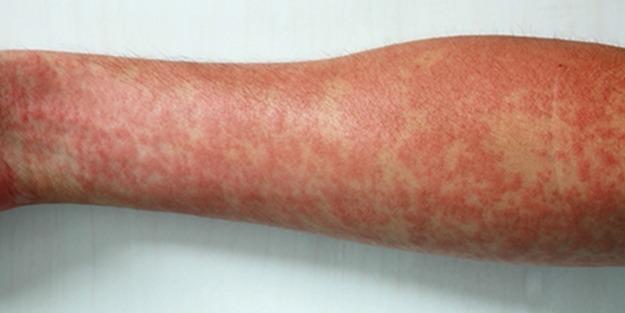 penisilin-alerjisi.jpg