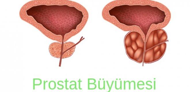 Prostat Büyümesi Bitkisel Tedavi Yöntemleri