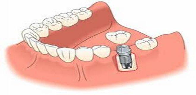 protetik-dis-tedavi-(protez-dis)-003.jpg