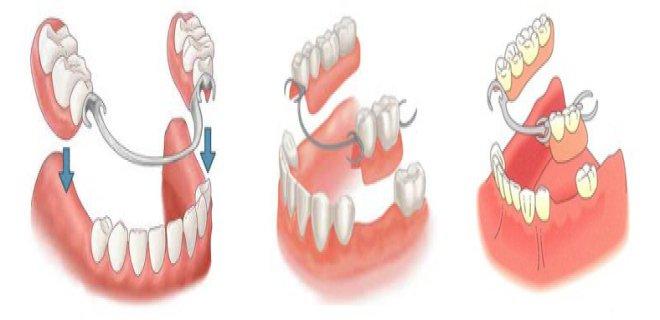protetik-dis-tedavi-(protez-dis)-004.jpg