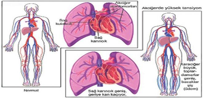 pulmoner-hipertansiyon-etkileri-001.Jpeg