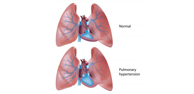 pulmoner-hipertansiyon.jpg
