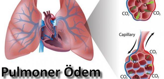 pulmoner-odem.jpg