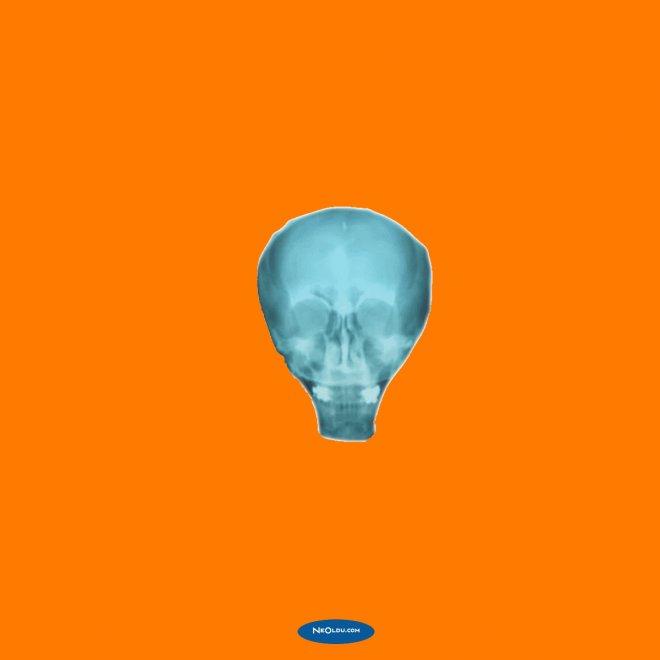 Rüyada Röntgen Görmek