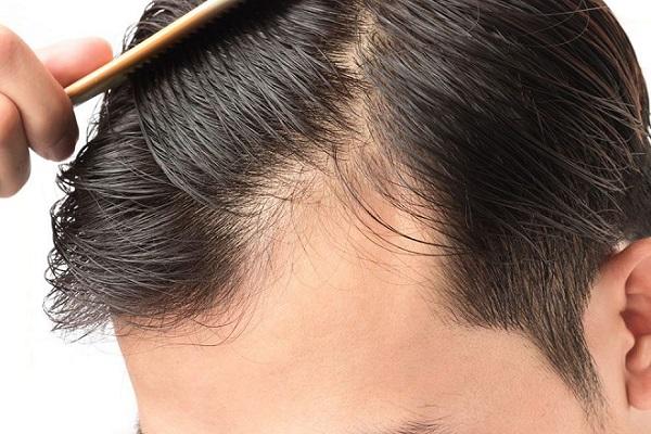 saç dökülmesinin nedenler ve çözüm yolları