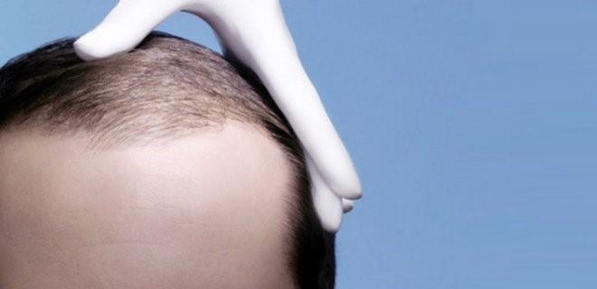 Saç Ekimi Hakkında