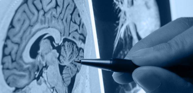 serebrovaskuler-hastalik-teshisi-ve-tedavi-yontemleri-005.jpg