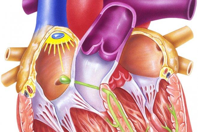 serebrovaskuler-hastalik.jpg