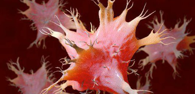 sistemik-lupus-eritematozus-teshisi-ve-tedavi-yontemleri-003.jpg