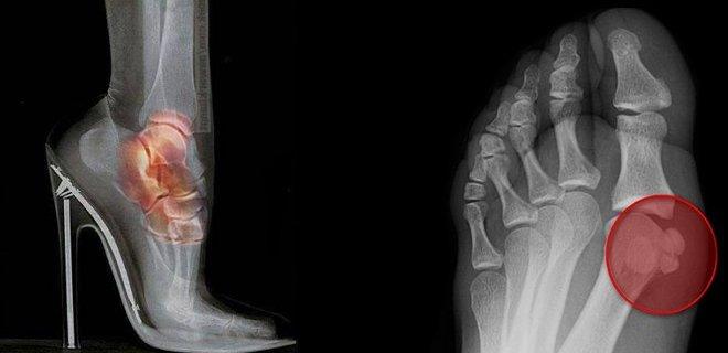 topuklu-ayakkabi-zararlari-003.jpg