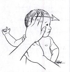 Tortikolis Tedavi Egzersizi 1