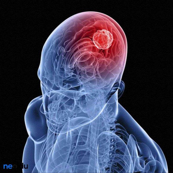 tümör.jpg
