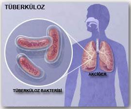 Tüberküloz Sırt Bölgesinde Ağrı Yapabilir