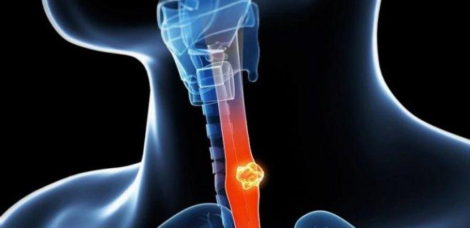 yemek borusu kanseri tedavisi