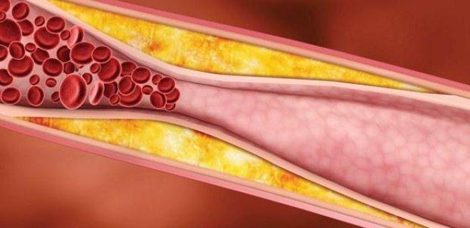 yuksek-kolesterol.jpg
